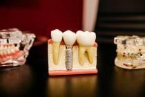 Welke behandelingen bij de tandarts in bijvoorbeeld Rijswijk?